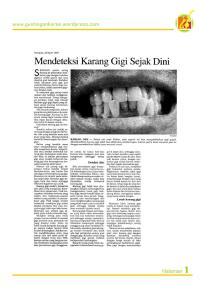 mendeteksi-karang-gigi-sejak-dini