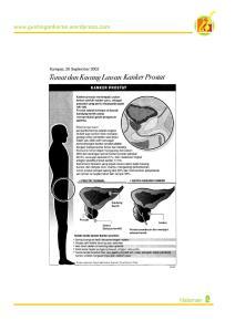 tomat-dan-kacang-lawan-kanker-prostat1